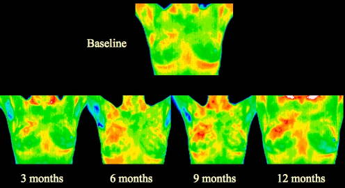 Painless Breast Imaging in Michigan